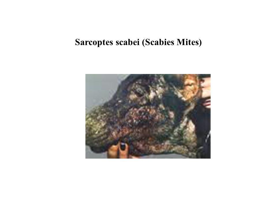 Sarcoptes scabei (Scabies Mites)
