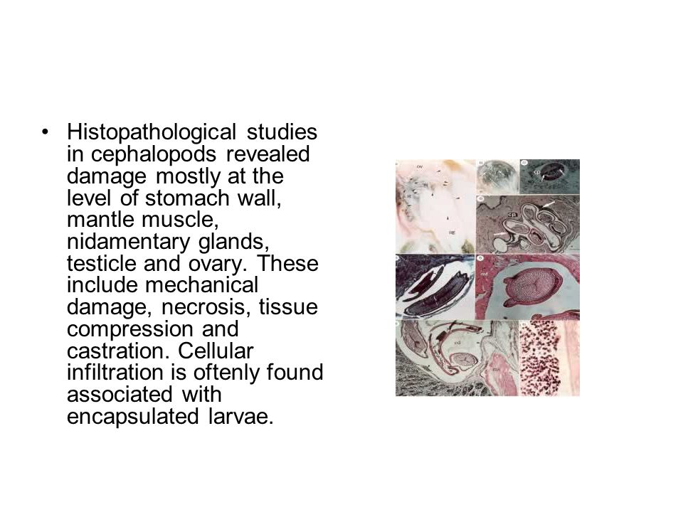 Histopathological studies in cephalopods revealed damage mostly at the level of stomach wall, mantle muscle, nidamentary glands, testicle and ovary.