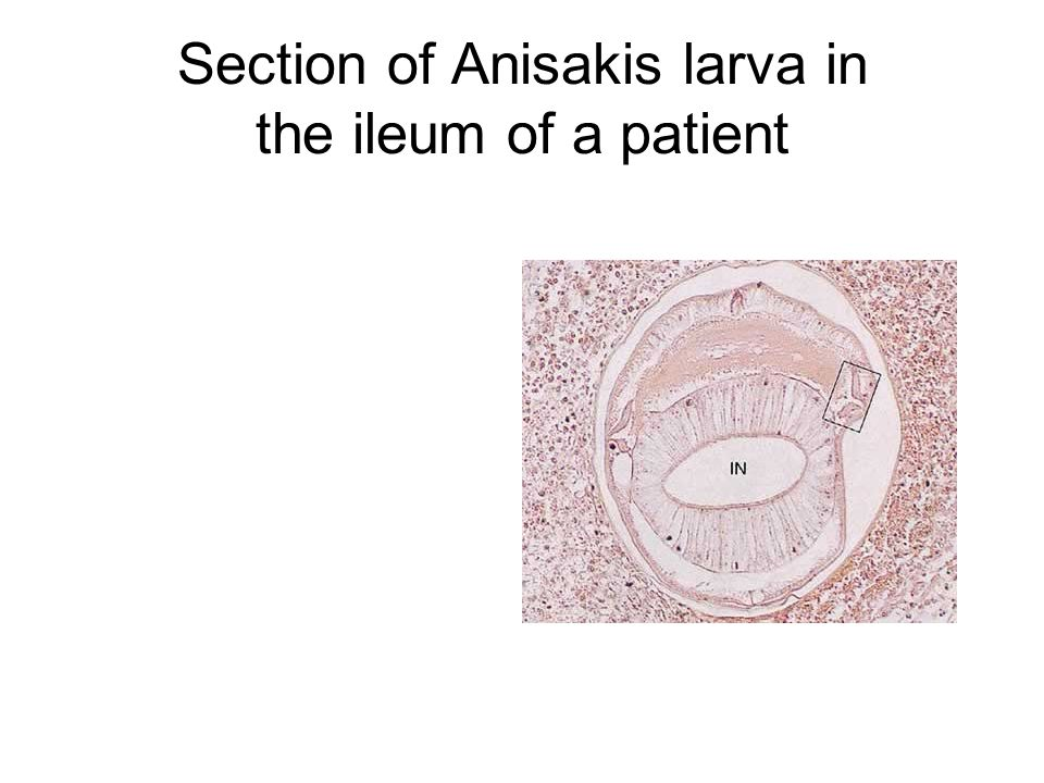 Section of Anisakis larva in the ileum of a patient