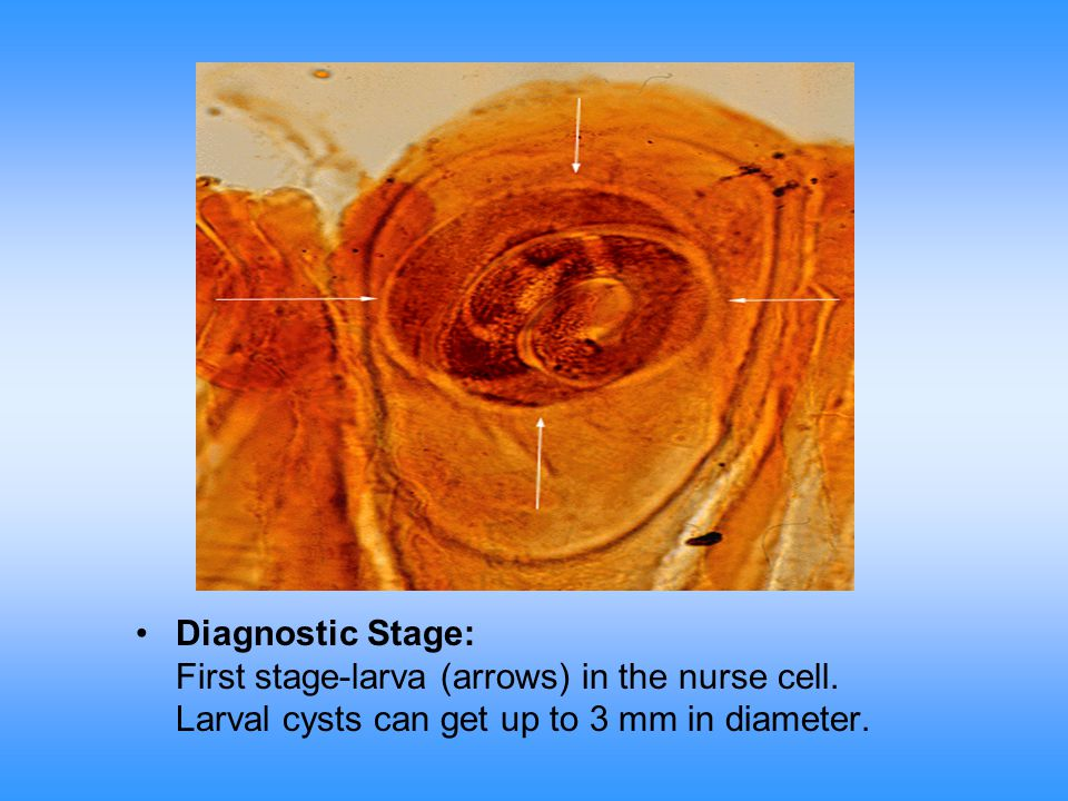 Diagnostic Stage: First stage-larva (arrows) in the nurse cell.