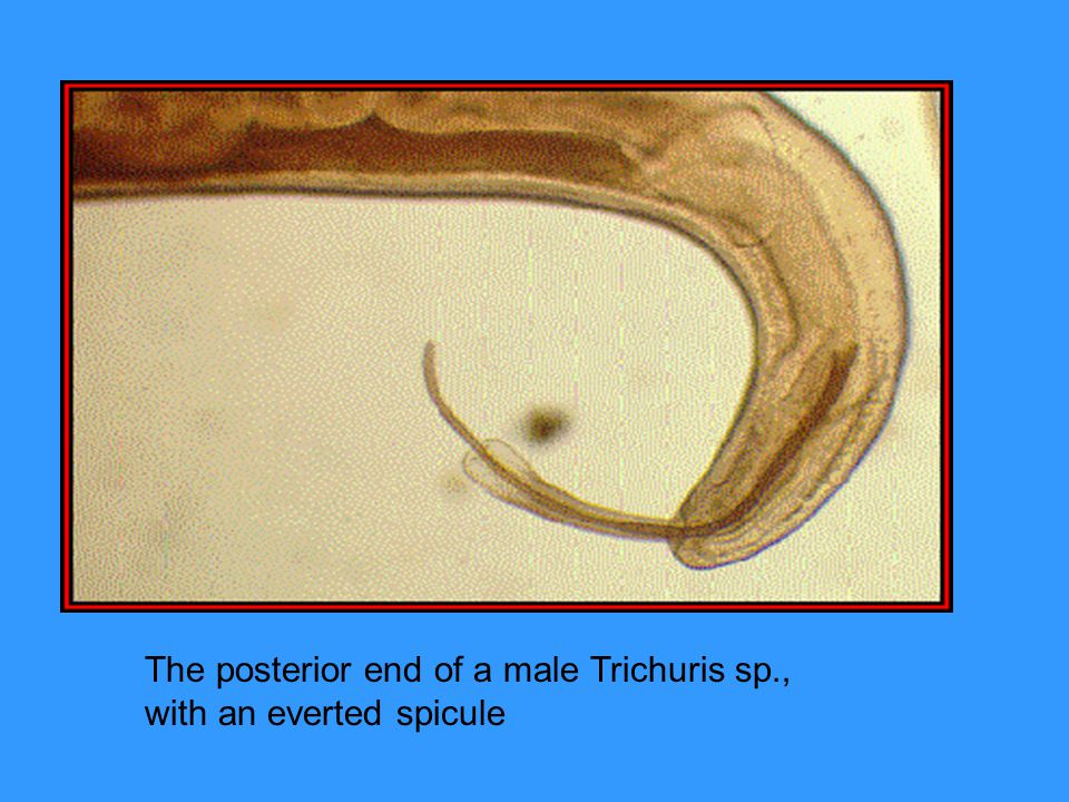 The posterior end of a male Trichuris sp., with an everted spicule