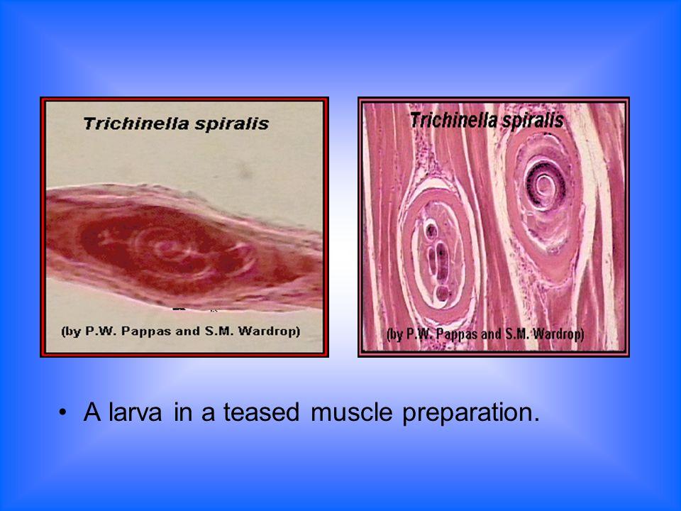 A larva in a teased muscle preparation.