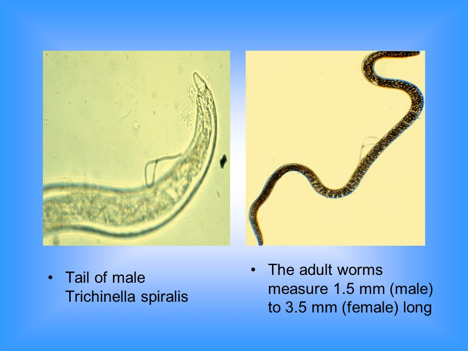 The adult worms measure 1.5 mm (male) to 3.5 mm (female) long