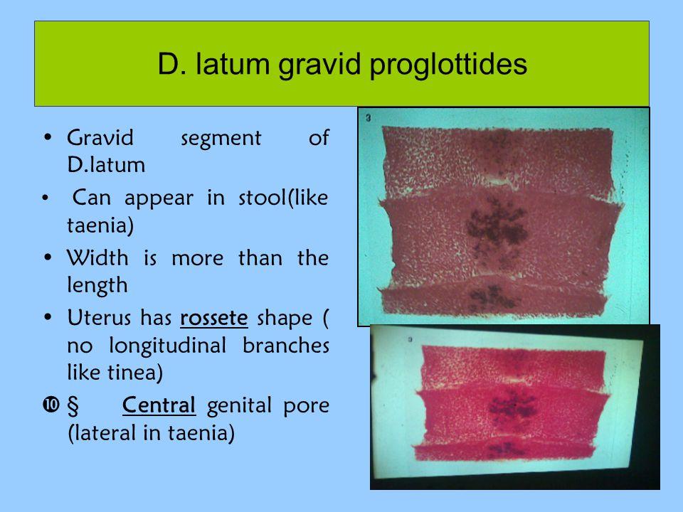 D. latum gravid proglottides