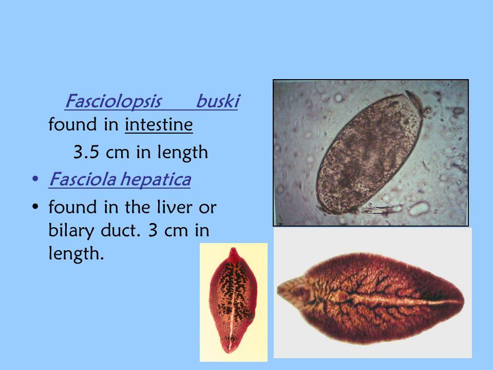 Fasciolopsis buski found in intestine