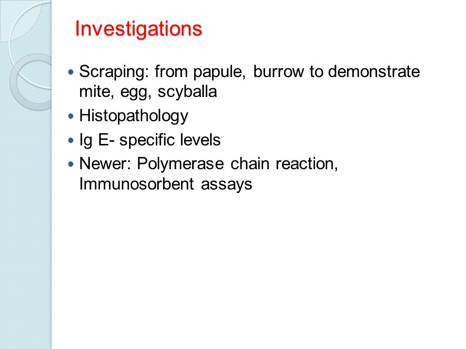 Investigations Scraping: from papule, burrow to demonstrate mite, egg, scyballa. Histopathology. Ig E- specific levels.