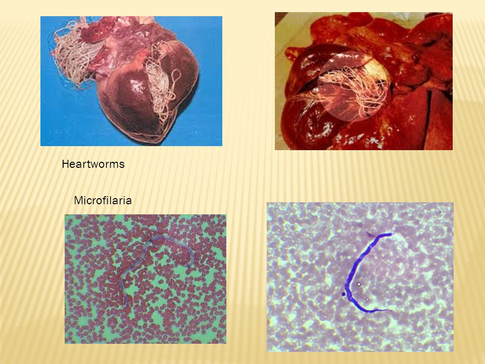 Heartworms Microfilaria