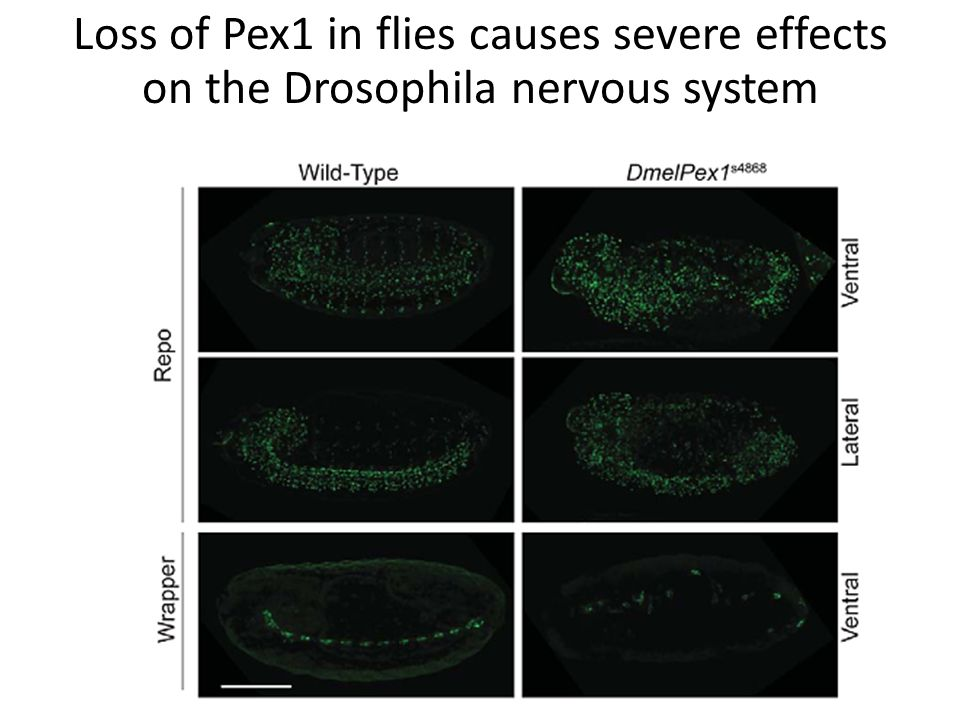 Loss of Pex1 in flies causes severe effects on the Drosophila nervous system