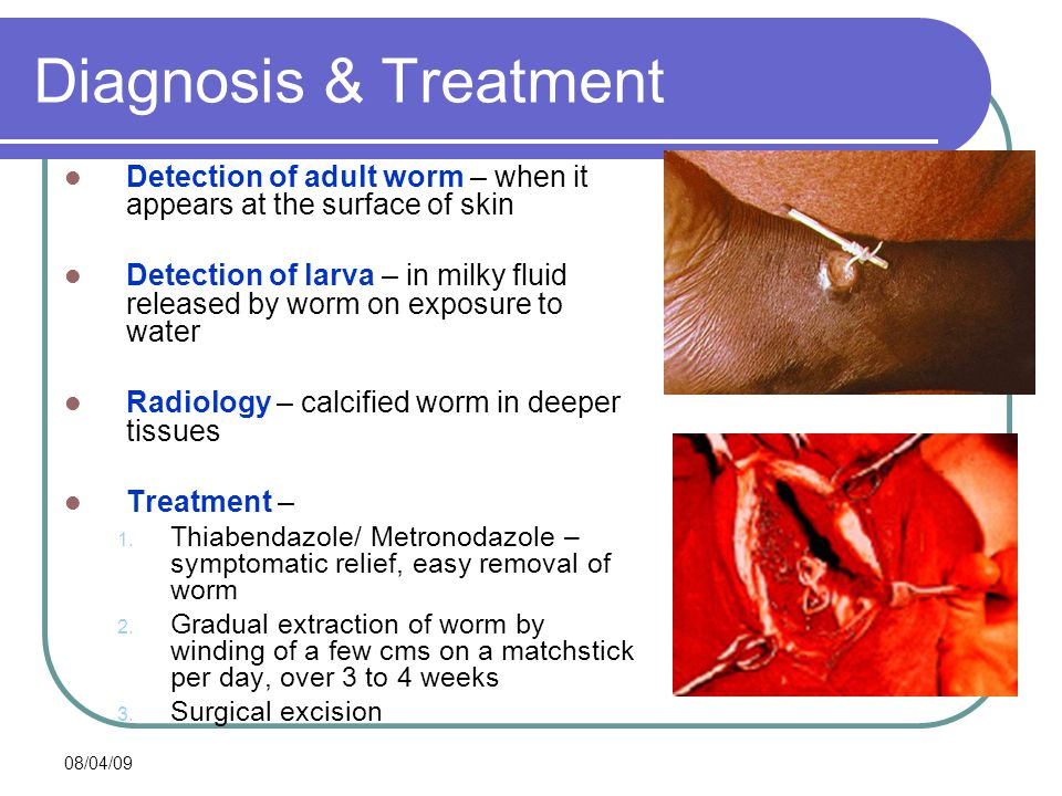Diagnosis & Treatment Detection of adult worm – when it appears at the surface of skin.