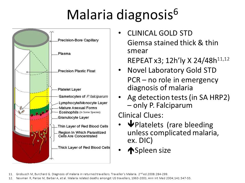 Malaria diagnosis6 CLINICAL GOLD STD Giemsa stained thick & thin smear