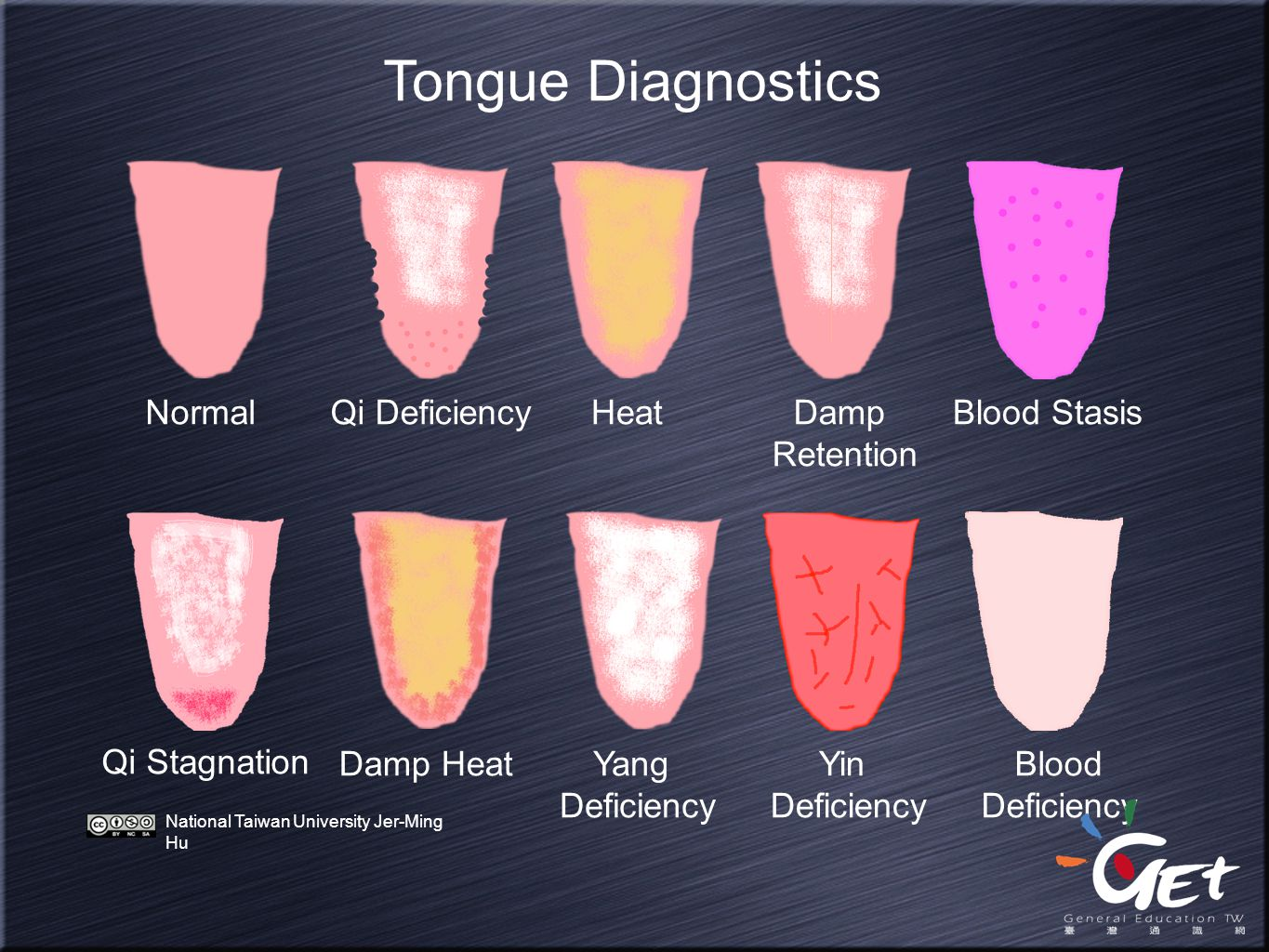 Tongue Diagnostics Normal Qi Deficiency Heat Damp Retention