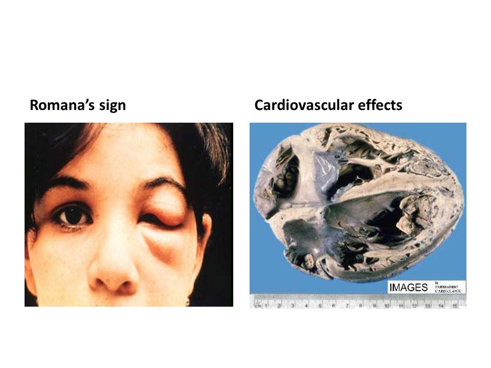 Romana's sign Cardiovascular effects