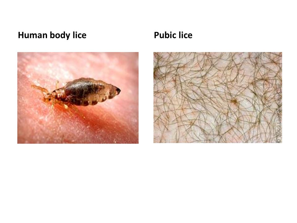 Human body lice Pubic lice