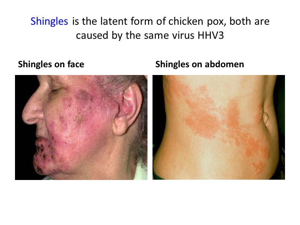 Shingles is the latent form of chicken pox, both are caused by the same virus HHV3