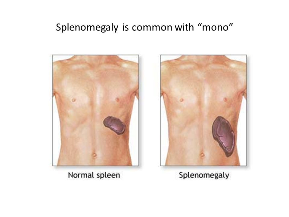 Splenomegaly is common with mono