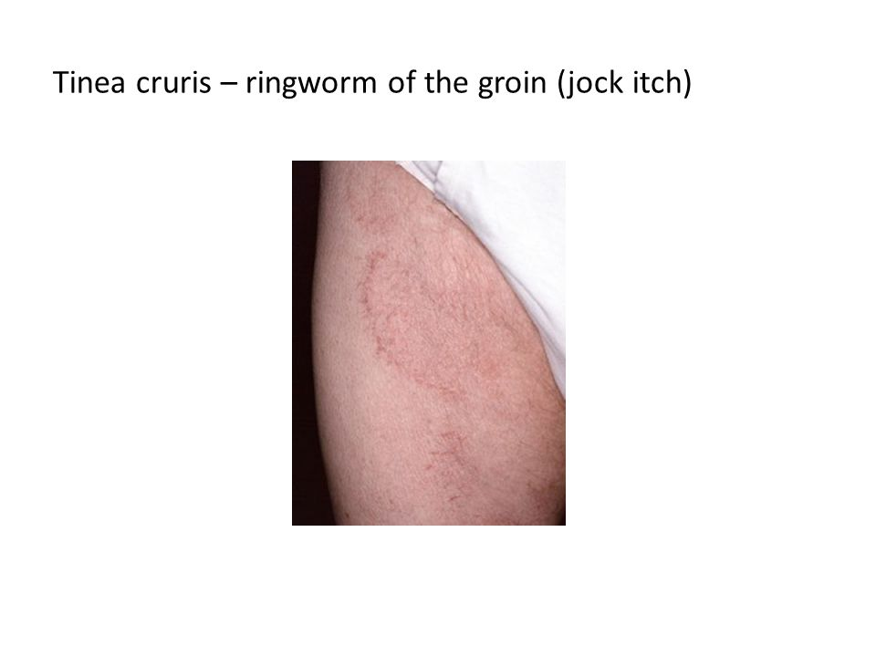 Tinea cruris – ringworm of the groin (jock itch)