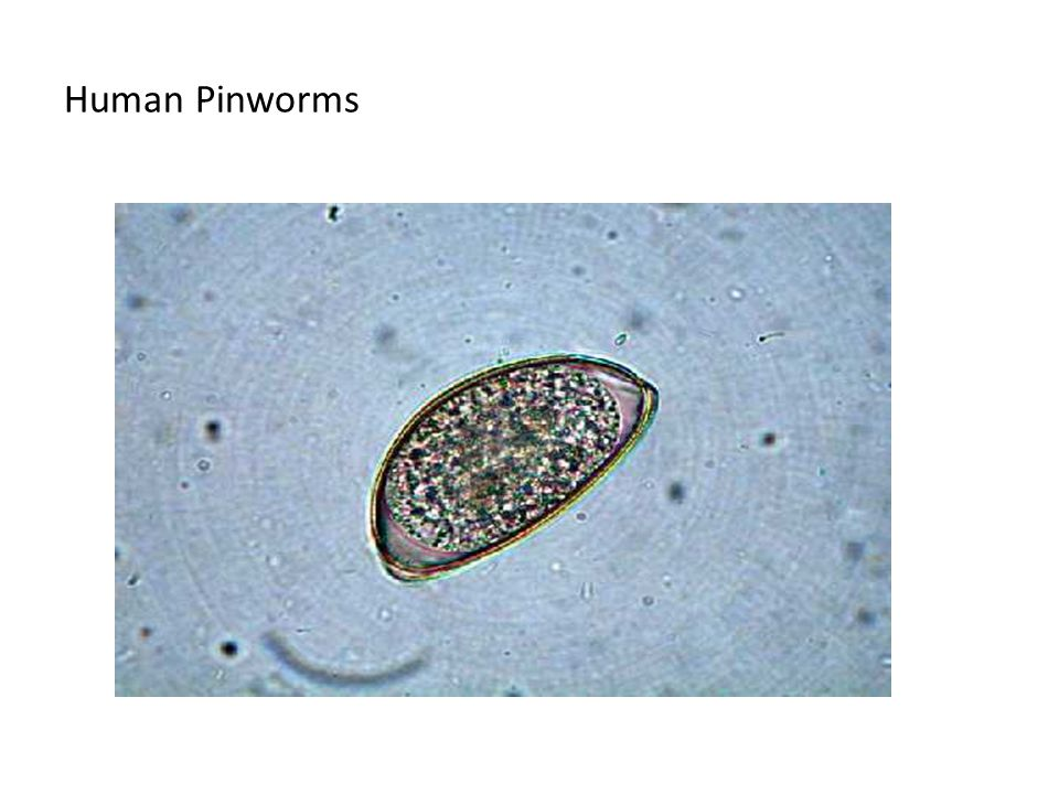 Human Pinworms