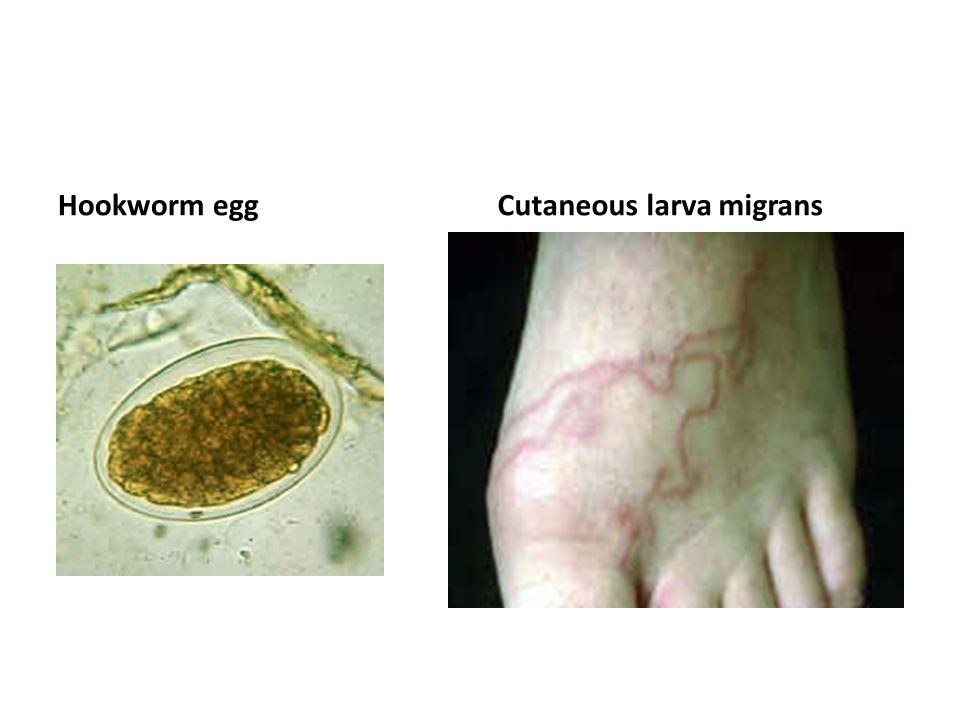 Hookworm egg Cutaneous larva migrans