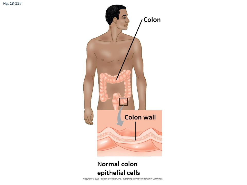 Colon Colon wall Normal colon epithelial cells Fig. 18-22a