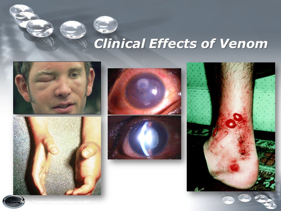 Clinical Effects of Venom