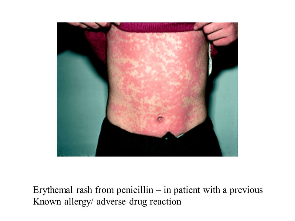 Erythemal rash from penicillin – in patient with a previous