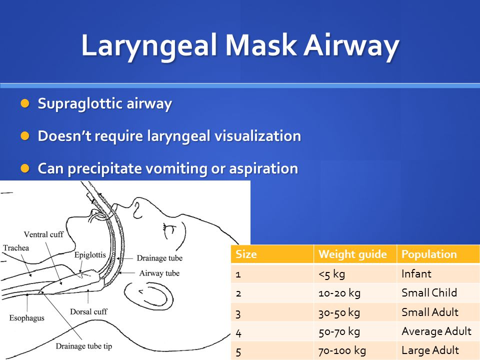 Laryngeal Mask Airway Supraglottic airway