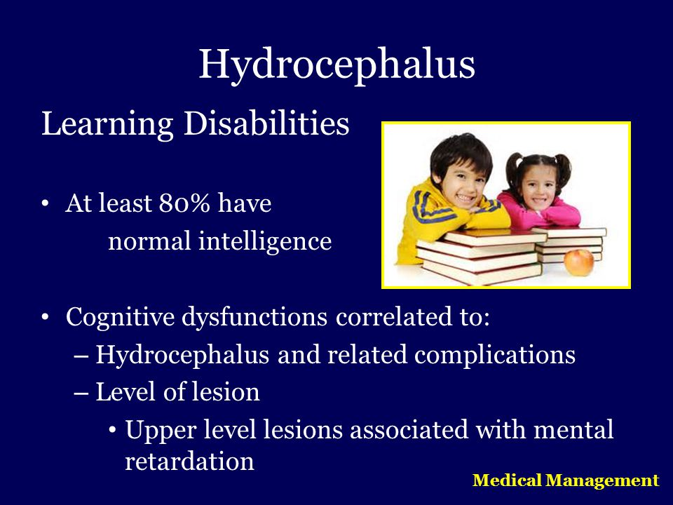 Hydrocephalus Learning Disabilities At least 80% have