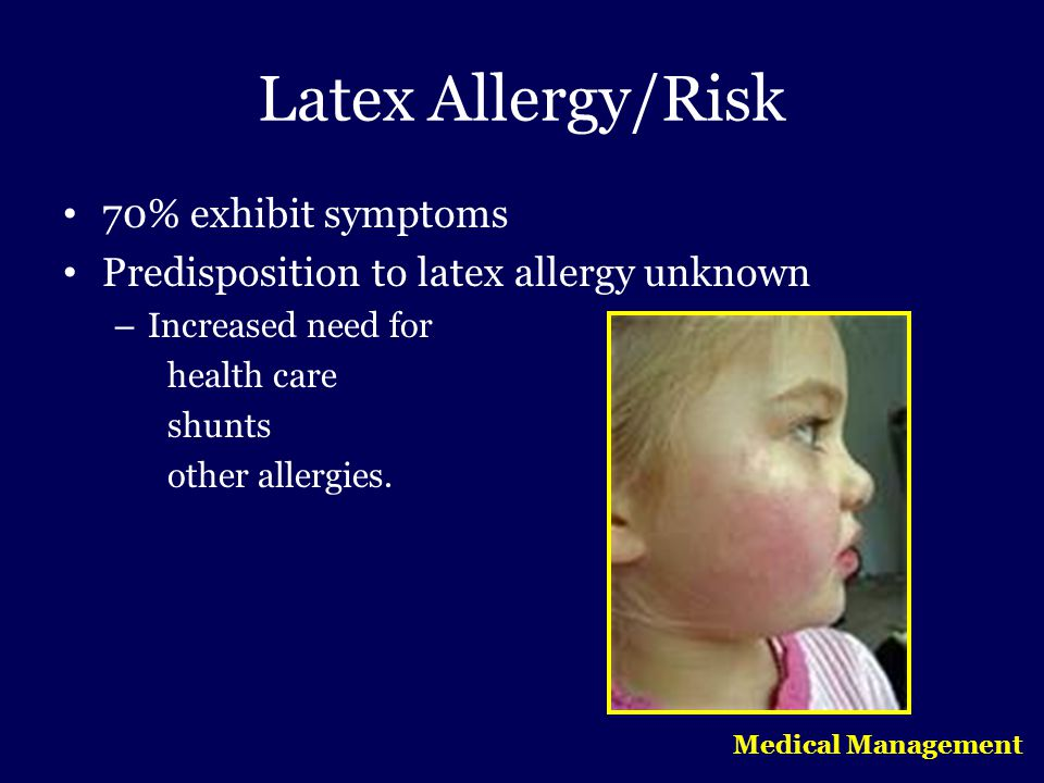 Latex Allergy/Risk 70% exhibit symptoms