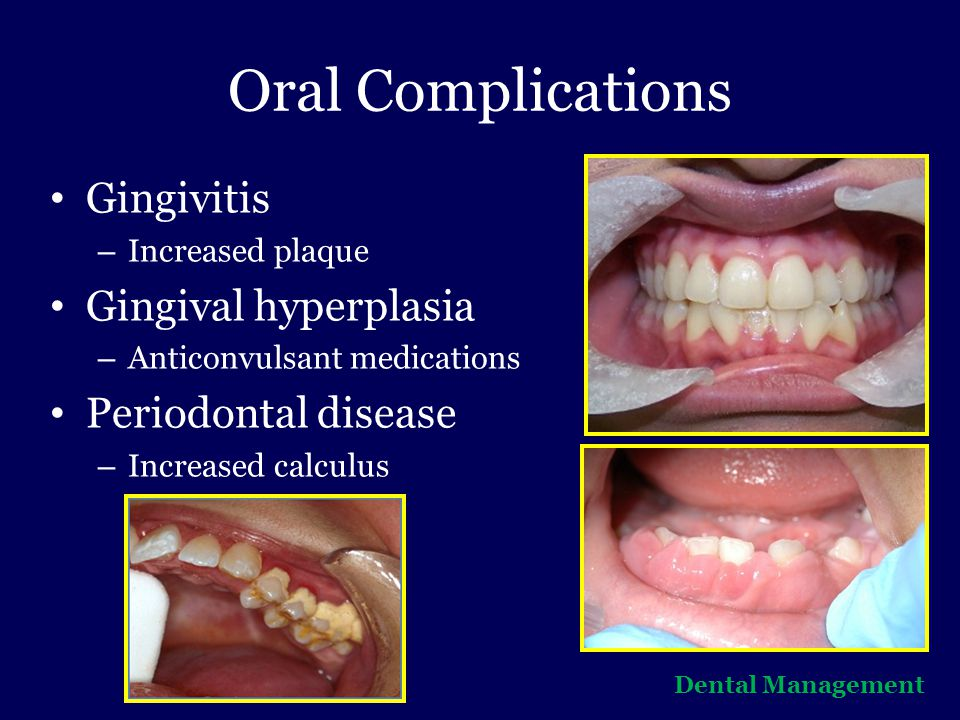 Oral Complications Gingivitis Gingival hyperplasia Periodontal disease