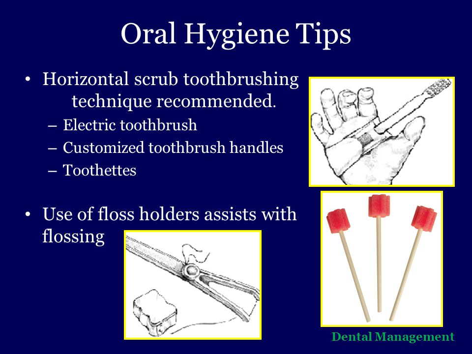 Oral Hygiene Tips Horizontal scrub toothbrushing technique recommended. Electric toothbrush. Customized toothbrush handles.