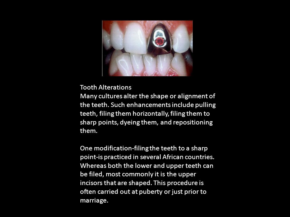 Tooth Alterations