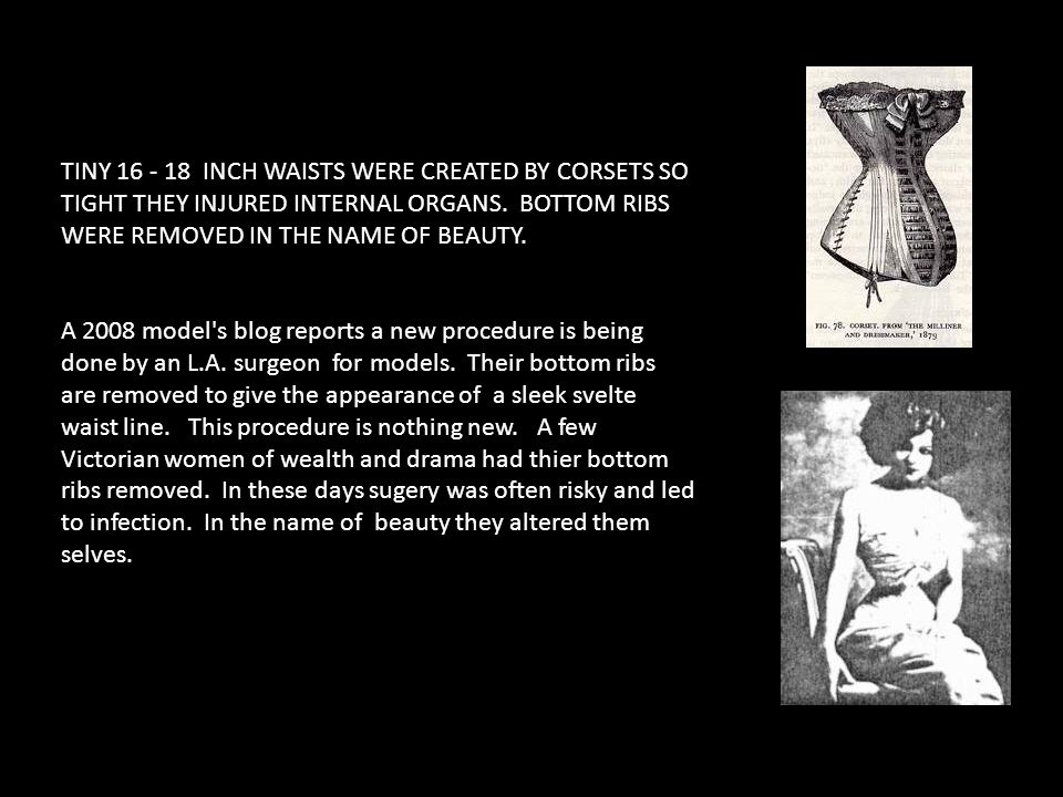 TINY 16 - 18 INCH WAISTS WERE CREATED BY CORSETS SO TIGHT THEY INJURED INTERNAL ORGANS. BOTTOM RIBS WERE REMOVED IN THE NAME OF BEAUTY.