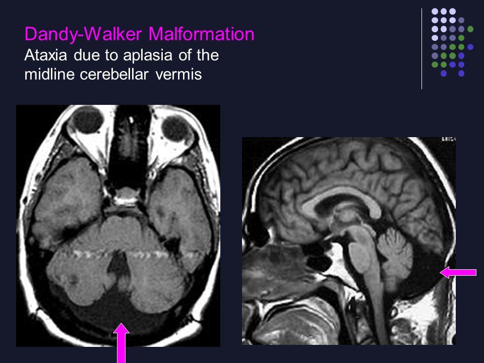 Dandy-Walker Malformation