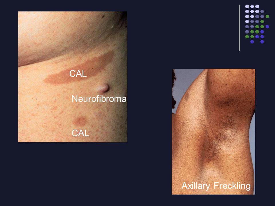 CAL Neurofibroma CAL Axillary Freckling