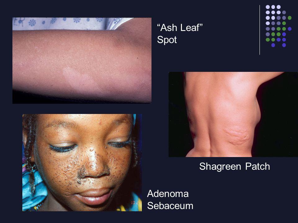 Ash Leaf Spot Shagreen Patch Adenoma Sebaceum