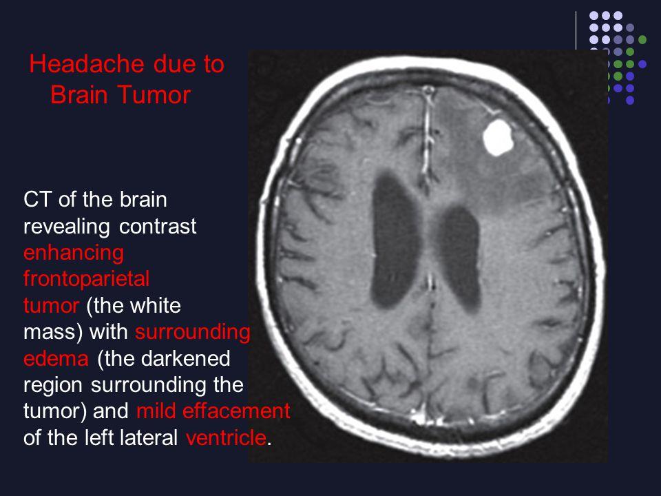 Headache due to Brain Tumor CT of the brain revealing contrast