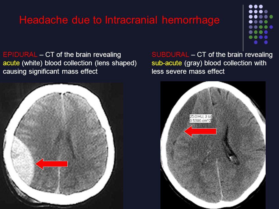 Headache due to Intracranial hemorrhage