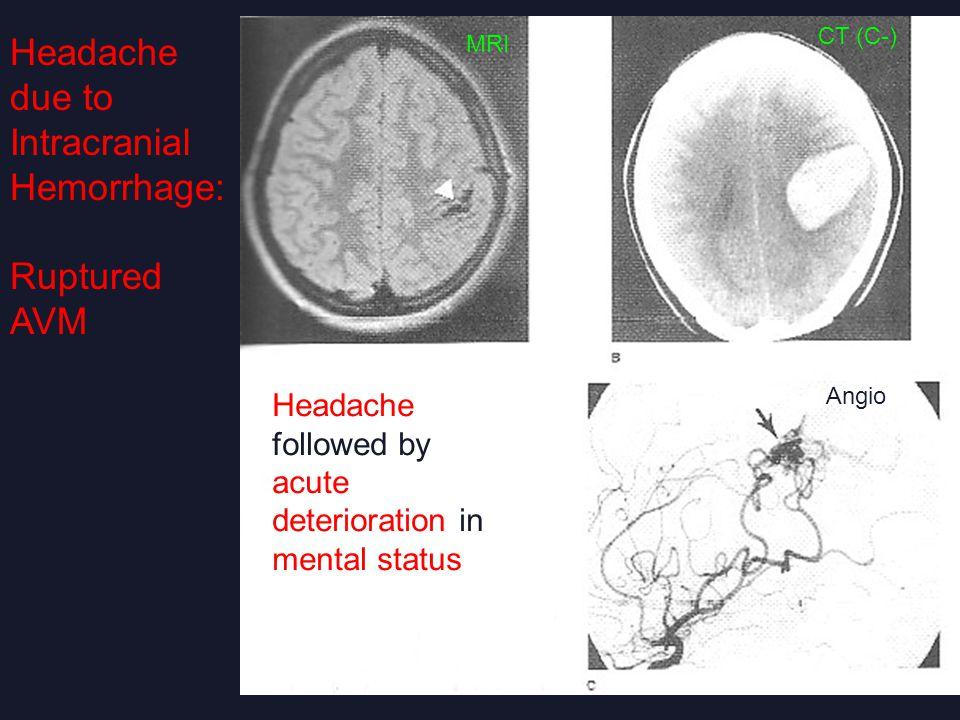 Headache due to Intracranial Hemorrhage: Ruptured AVM Headache