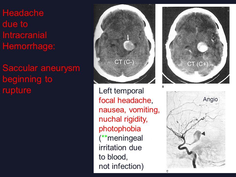 Headache due to Intracranial Hemorrhage: Saccular aneurysm