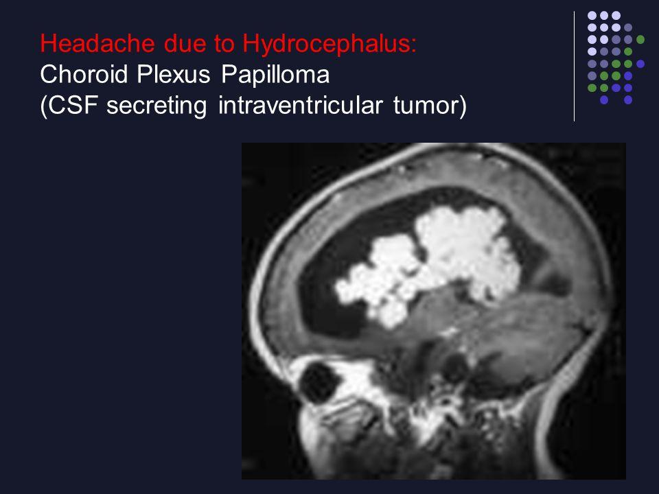 Headache due to Hydrocephalus: