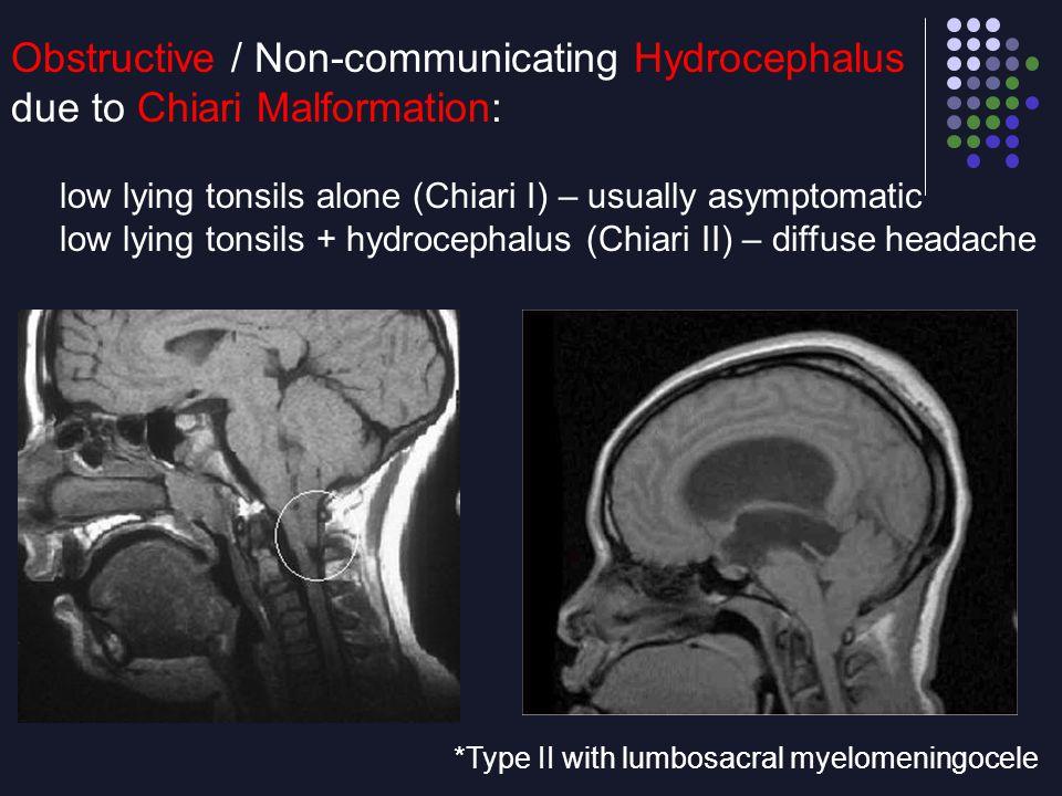 Obstructive / Non-communicating Hydrocephalus