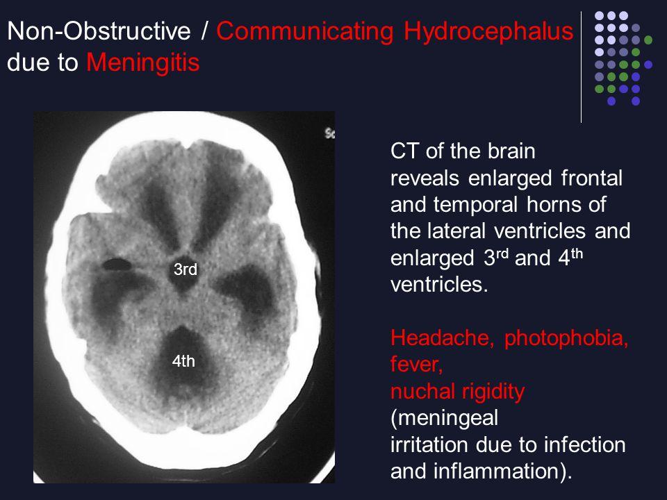 Non-Obstructive / Communicating Hydrocephalus due to Meningitis