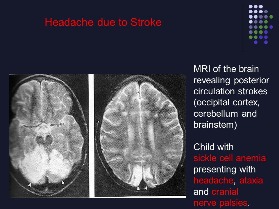 Headache due to Stroke MRI of the brain revealing posterior