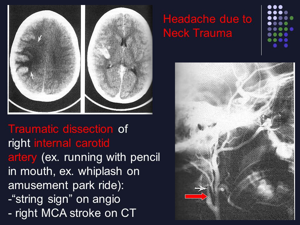 Headache due to Neck Trauma. Traumatic dissection of. right internal carotid. artery (ex. running with pencil.