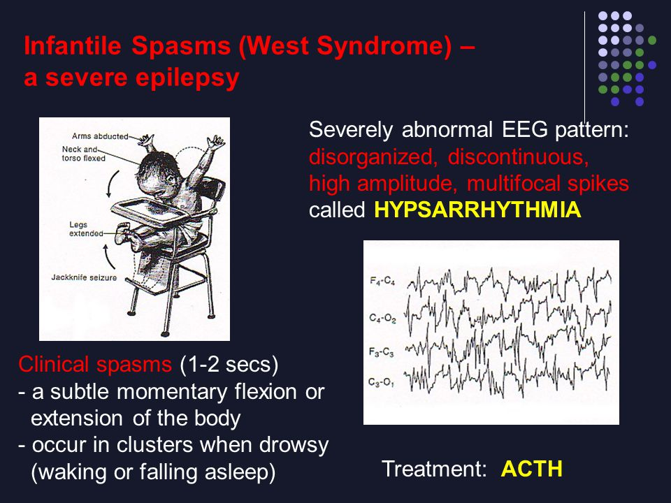 Infantile Spasms (West Syndrome) – a severe epilepsy