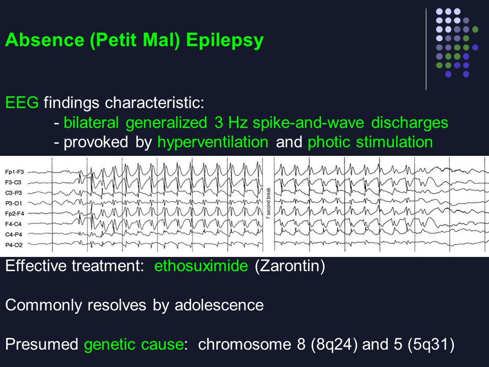 Absence (Petit Mal) Epilepsy