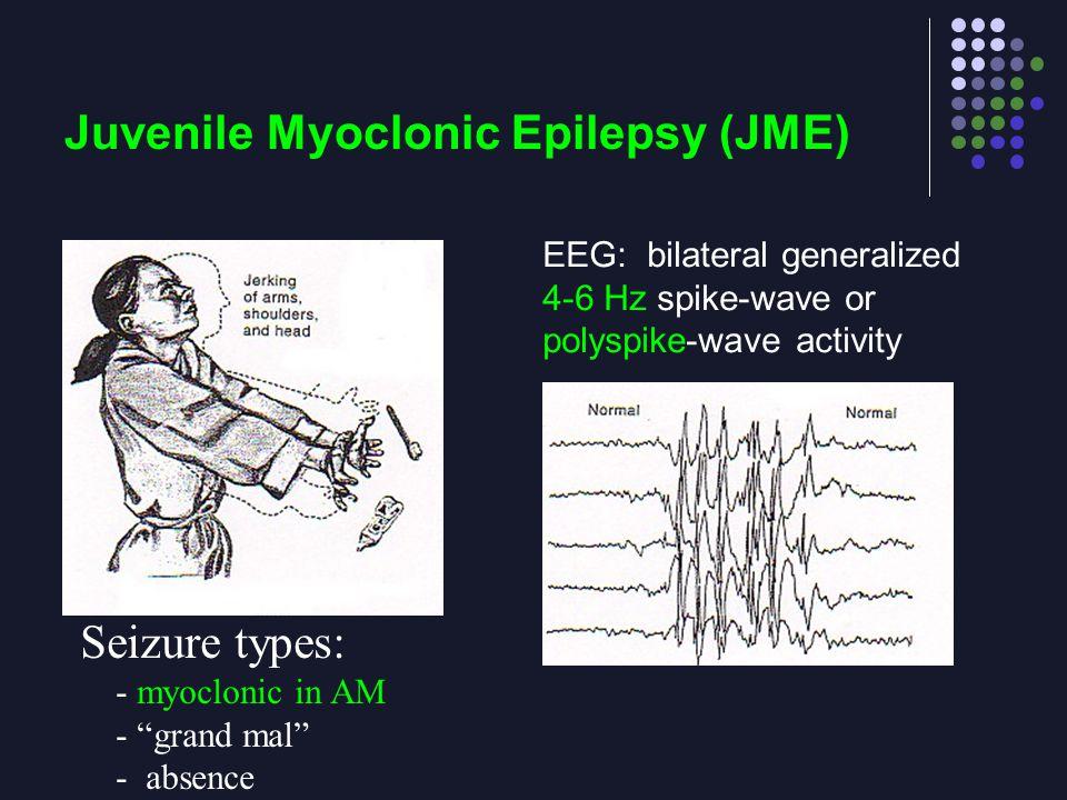 Juvenile Myoclonic Epilepsy (JME)