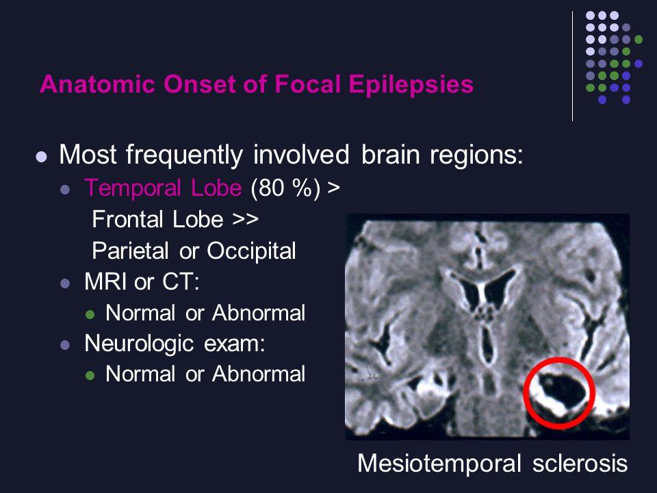 Anatomic Onset of Focal Epilepsies