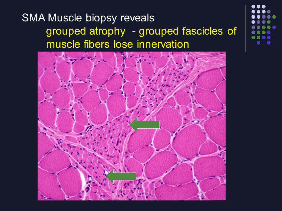 SMA Muscle biopsy reveals