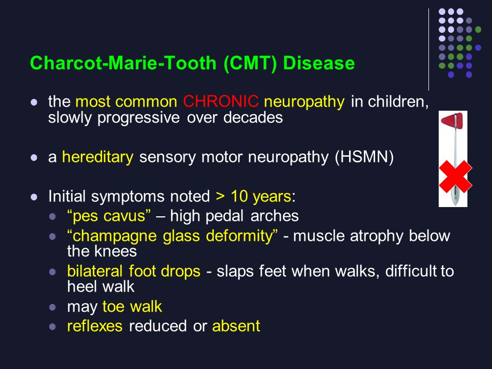 Charcot-Marie-Tooth (CMT) Disease